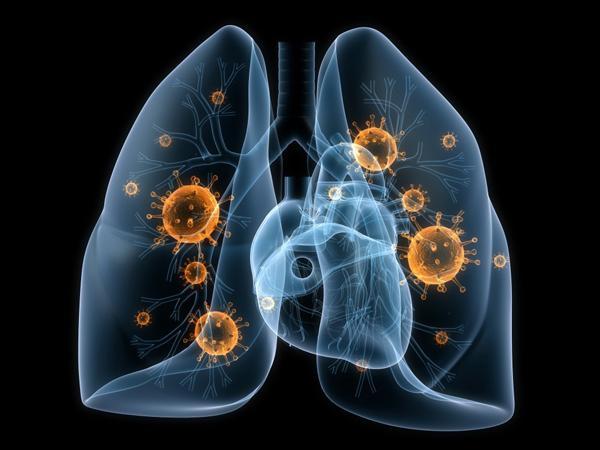 Респираторно-синцитиальный вирусная инфекция