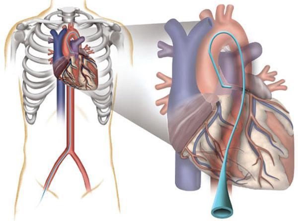 Катетерезация сердца