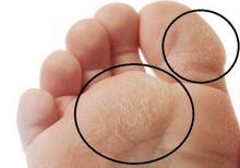 Ноги при диабете. начальные симптомы проблем