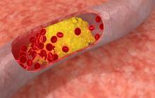 Фото: Холестерин в крови
