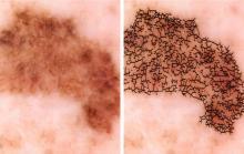 Рак кожи: ученые изобрели детектор меланомы