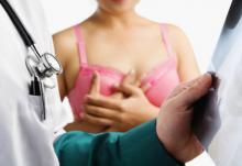 Маммография: цели, описание, риски