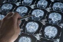 МРТ Альцгеймера