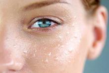 капли воды на лице девушки, аллергия на воду