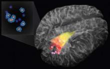Зонд позволяет хирургам увидеть в мозге раковые клетки очень малой плотности