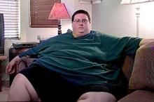 Морбидное - патологическое ожирение