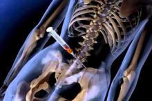 Биопсия костного мозга