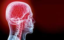 Что такое транзиторная ишемическая атака