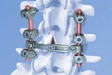 Лечение повреждения позвоночника, сопряженного с остеопорозом
