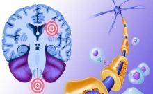 Рассеянный склероз: влияние солнца и лишего веса