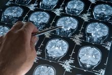 Изучение Болезни Альцгеймера