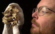 Поражения, которые вызвал туберкулез костей