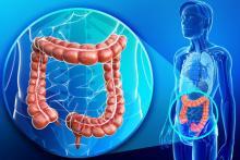 Иерсиниоз: симптомы, признаки, лечение