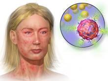 Анафилактический шок: причины, симптомы, лечение