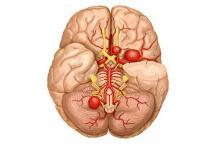 Хирургия аневризмы головного мозга