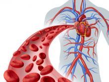 Ангиография: исследование кровеносных сосудов
