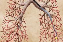 Биопсия легких: определение, подготовка, описание