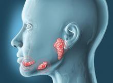 Ксеростомия, или сухость во рту: причины, симптомы, лечение