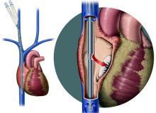 Экстракорпоральная мембранная оксигенация (ЭКМО)