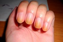 Желтые ногти требуют лечения
