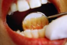 Продукты от которых чернеют зубы