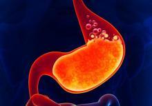 Ингибиторы секреции желудочного сока