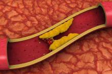Как понизить холестерин и триглицериды народными средствами