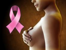 Рак молочной железы: 10 самых распространенных мифов