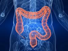 Колоноскопия кишечника: как и когда проводится