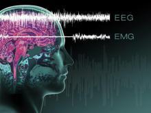 Нарколепсия: описание, причины, лечение
