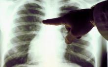 борьба с туберкулезом в Москве