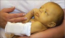 как лечить желтуху у новорожденных