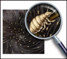 педикулез - головные вши