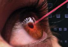 Офтальмологическая хирургия: описание, диагноз и подготовка