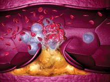 Тромболитическая терапия