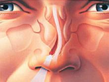 Септопластика – пластика носовой перегородки