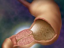 Пилоростеноз: диагностика, лечение
