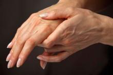 Ревматоидный артрит и пальцы рук