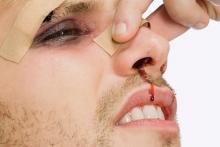 Внешние и внутренние травмы носа