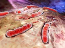 Холера: симптомы, лечение, профилактика